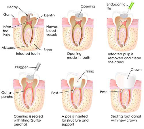 Root Canal in Seal Beach