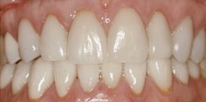 Before and After Invisalign near Rossmoor