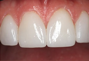 Before and After Dental Implants in Seal Beach