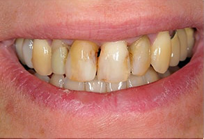 Seal Beach Before and After Teeth Whitening