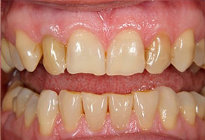Los Alamitos Before and After Dental Crowns
