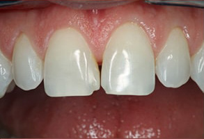 Before and After Invisalign near Los Alamitos